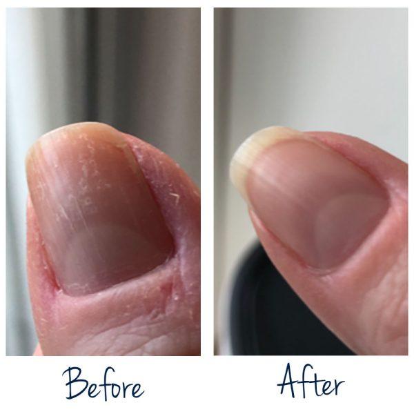 Resultaat gebruik Nail Essentials Set voor zeer beschadigde nagels