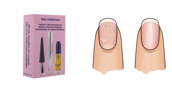 Herôme Nail Essentials Set voor zeer beschadigde nagels na kunstnagels of medicijngebruik