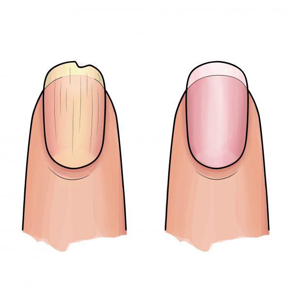 Resultaat gele Nail Essentials Set