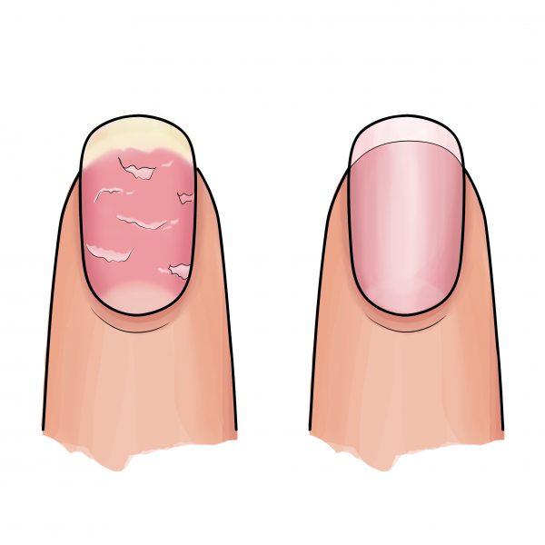 Resultaat roze Nail Essentials Set